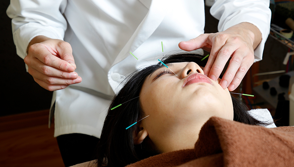 美容、美容鍼、顔の鍼