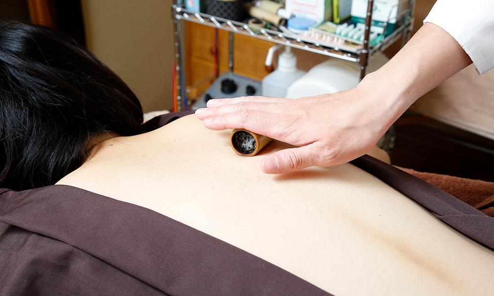 肩こり、背中のはり、自律神経調整の灸、竹灸